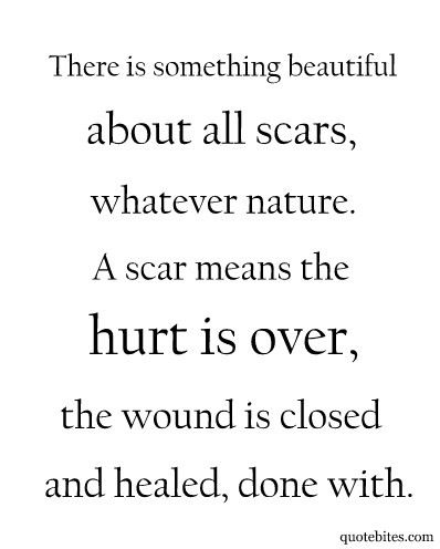 Scar quote #1